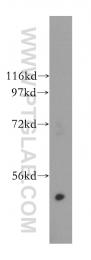 15164-1-AP - Galactokinase 2