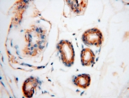 15831-1-AP - Glycyl-tRNA synthetase