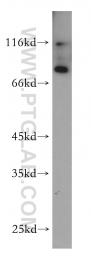 12601-1-AP - GCLC / GLCLC