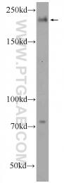 25022-1-AP - TUBGCP6 / GCP6