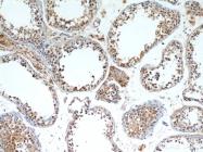 11293-1-AP - Hepatopoietin