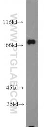 10356-1-AP - GGA2