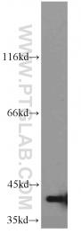 11641-1-AP - G Protein alpha Inhibitor 3