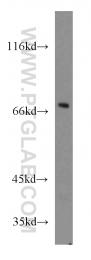 14078-1-AP - GNL1 / HSR1