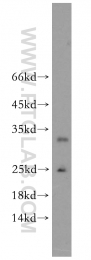 18731-1-AP - Glutathione Peroxidase 5 / GPX5