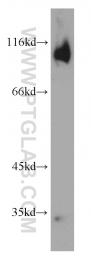 11994-1-AP - Glutamate receptor 2 / GLUR2