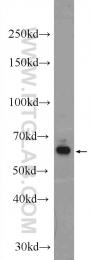 24606-1-AP - Rhodopsin kinase