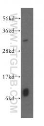 15838-1-AP - GSTT1