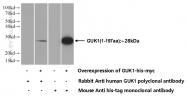 10755-1-AP - Guanylate kinase / GUK1