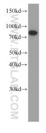 60250-1-Ig - HADHA
