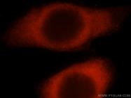 16375-1-AP - Histidyl-tRNA synthetase / HARS