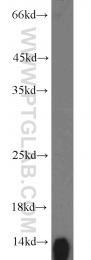 16216-1-AP - Hemoglobin beta chain
