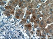 14492-1-AP - HBX-interacting protein / XIP