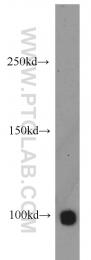 11955-1-AP - SMARCA6 / HELLS