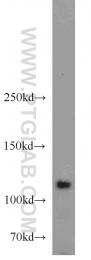 10390-1-AP - HGS / HRS