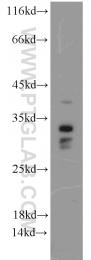 15446-1-AP - Histone H1.2
