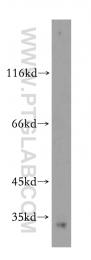 19649-1-AP - Histone H1.2