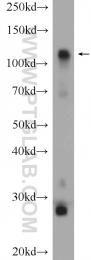 15656-1-AP - Hexokinase-1