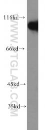 19662-1-AP - Hexokinase-1