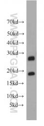 55072-1-AP - HLA-DQA2