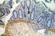 18837-1-AP - Hemicentin-1