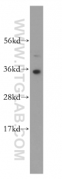 14597-1-AP - HMGB2 / HMG2