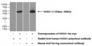 13513-1-AP - HOXA1 / HOX1F