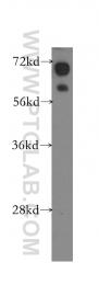 10928-1-AP - 11-beta HSD1 / HSD11B1