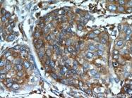 14700-1-AP - Endoplasmin / HSP90B1 / TRA1