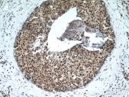 17168-1-AP - Histone H3.2