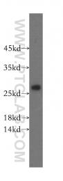 16701-1-AP - IPP isomerase 2 / IDI2