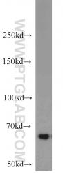 14642-1-AP - IGF2BP3 / IMP3