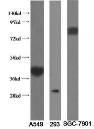 11920-1-AP - IL1RL1 / ST2