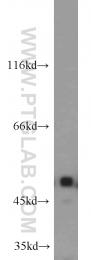 12955-1-AP - Integrin-linked protein kinase