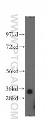 11560-1-AP - ING2 / ING1L