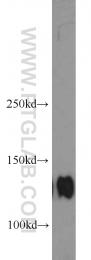 10569-1-AP - CD49e / ITGA5