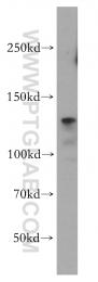 12594-1-AP - CD29 / Integrin beta-1