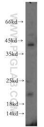 12300-1-AP - ITGB1BP1 / ICAP1