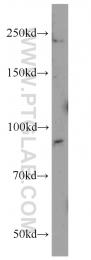 19695-1-AP - Integrin beta-6 / ITGB6