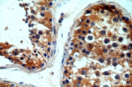19962-1-AP - IP3 receptor 1 / ITPR1