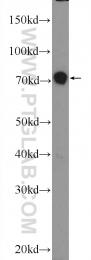 25979-1-AP - Junctophilin-1 / JHP1