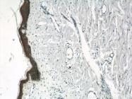 11146-1-AP - Junction plakoglobin