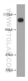 21733-1-AP - KANK2 / SIP