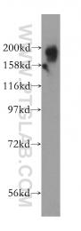 15263-1-AP - KIF1B