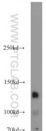 18696-1-AP - CD117 / c-kit