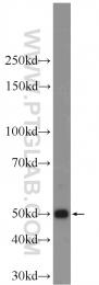 24789-1-AP - Cytokeratin 12