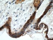10143-1-AP - Cytokeratin 14