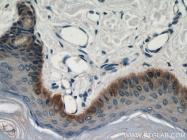 22221-1-AP - Cytokeratin 14