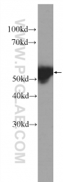 60320-1-Ig - Cytokeratin 14
