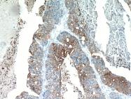 10712-1-AP - Cytokeratin 19